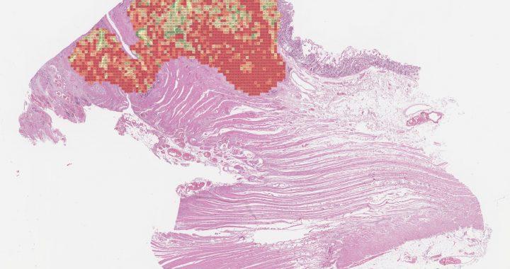 KI-basierte marker für Darmkrebs kann helfen, verbessern die Qualität der Behandlung