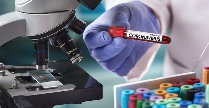Coronavirus: In Deutschland nur 15 Prozent der Infektionen bestätigt – Naturheilkunde & Naturheilverfahren Fachportal