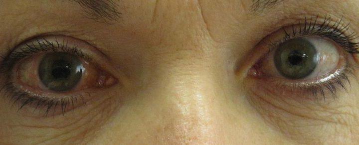 Forscher entdecken genetische Ursache für ein Glaukom