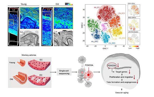 Forscher liefern neue Erkenntnisse über Primaten arterielle Alterung