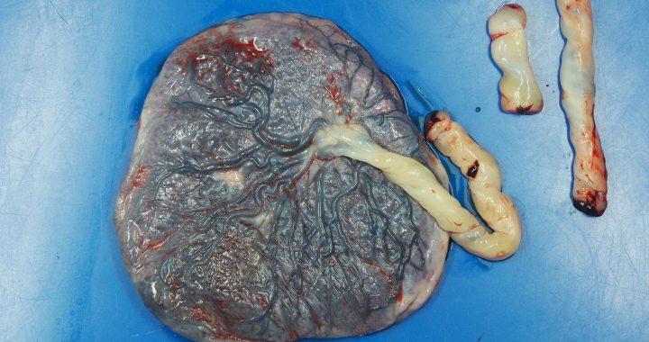 Plazenta von COVID-19-positiven schwangeren Frauen zeigen Verletzungen