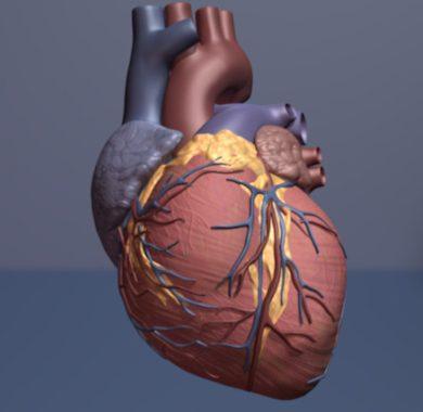 Genetische Risiko-scores kann sich verbessern, die klinische Identifizierung von Patienten, die mit Herzinfarkt-Risiko