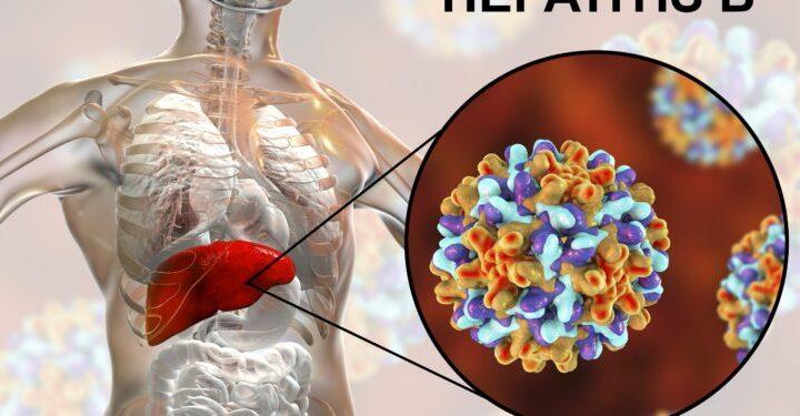 Hepatitis-B: Warum das Immunsystem das Virus nicht bekämpfen kann – Naturheilkunde & Naturheilverfahren Fachportal