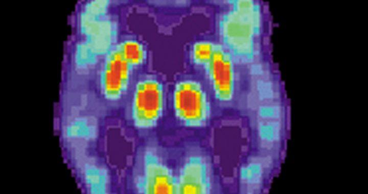 Alzheimer: Neue gen fahren darf frühestens Gehirn verpasst