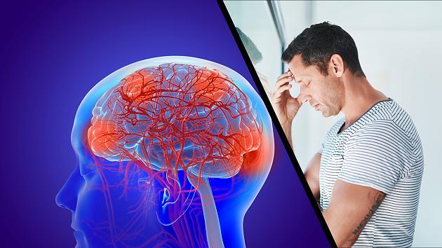 Alzheimer kündigt sich an: Wenn du ständig negativ denkst, kann das dein Risiko erhöhen