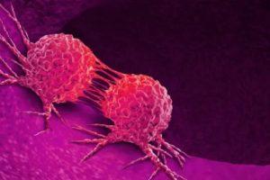 Wussten Sie Diese Lebensmittel Können Ihnen Helfen, Im Kampf Gegen Den Krebs?