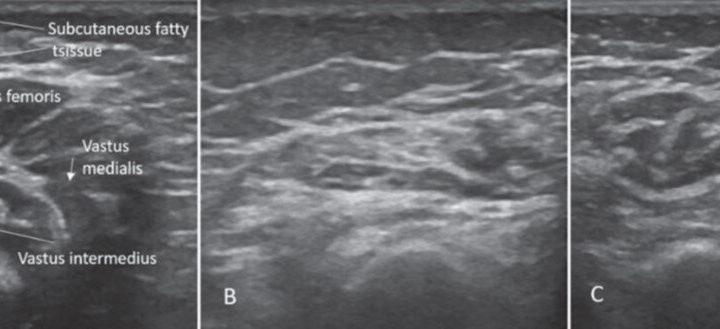 Behandlung von frühen oder warten? Experten grübeln beste Weg, um zu verwalten milderen Formen der spinalen Muskelatrophie