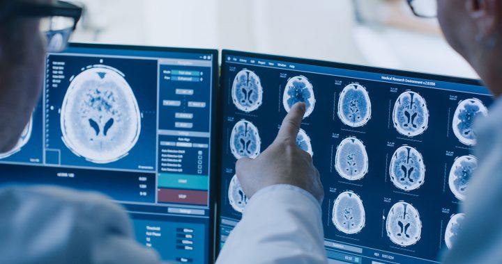 Diagnose Glioblastom: Wie werden Hirntumoren heute behandelt?
