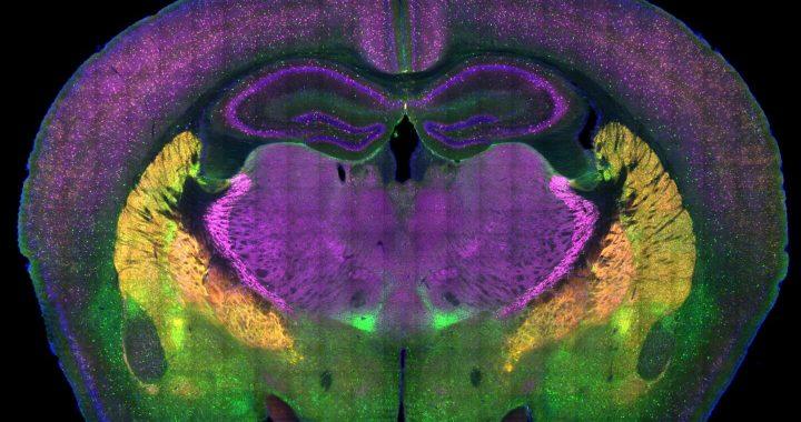 Autismus-Forscher Karte Gehirn schaltungen der sozialen Präferenz
