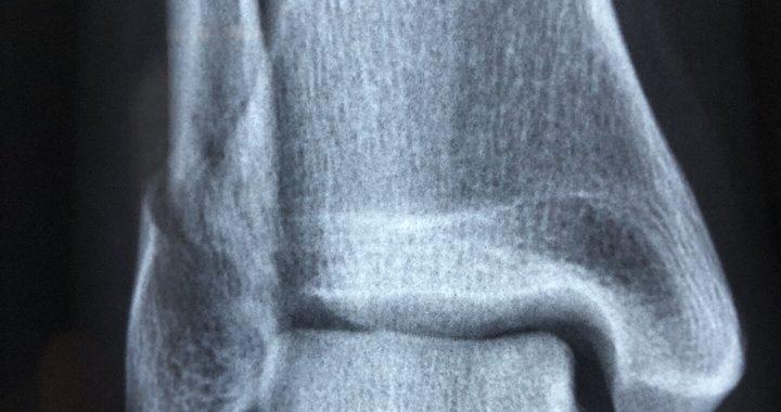 Studie zeigt genetische Marker sind nützlich in der Vorhersage von osteoporotischen Frakturrisiko