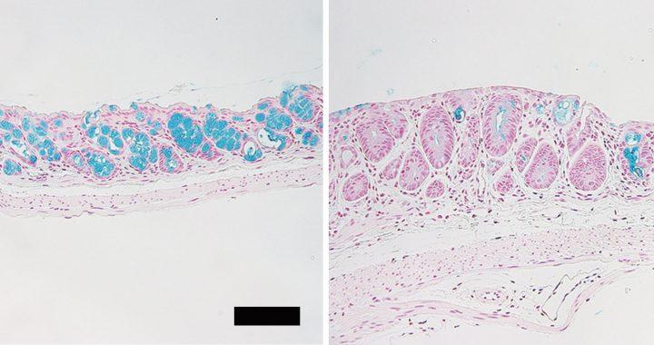 Verlust der Darm-goblet-Zellen verursacht tödlichen Krankheit nach Stammzell-transplantation