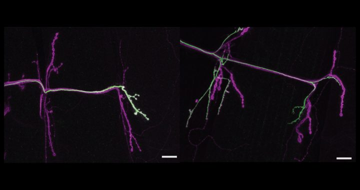 Neuronen zeigen unterschiedliche Stile, wie Sie interagieren mit dem gleichen Muskel partner