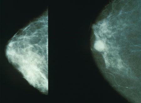 Mammographie-screening Frauen in Ihren Vierzigern, die Leben rettet