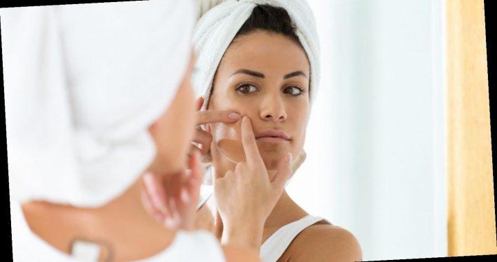 Pickel Patches gelten als Wundermittel gegen Hautunreinheiten, aber wieso eigentlich?